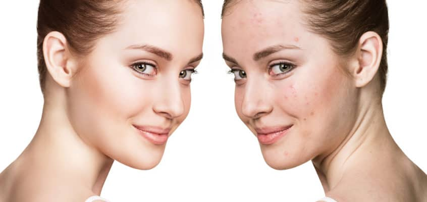 Vitamin B3 and Its Skincare Benefits