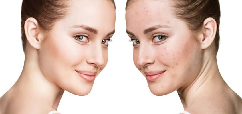Vitamin-B3-and-its-Skincare-Benefits