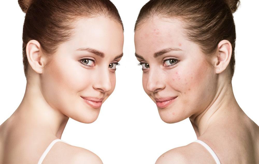 Vitamin-B3-and-its-Skincare-Benefits